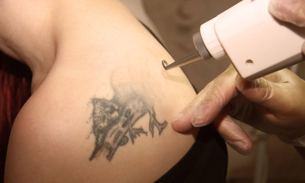 Fotos: Tattoolos